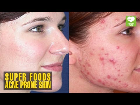 Superfoods for Acne Prone Skin | Health Tips | Educational Video