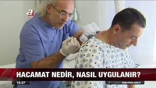 ATV Ana Haberde Tıbbi Hacamat Tedavisi - Dr. Turanşah Tümer