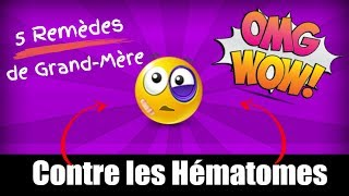 😲5 REMÈDES DE GRAND-MÈRE CONTRE LES HÉMATOMES ★★★★★