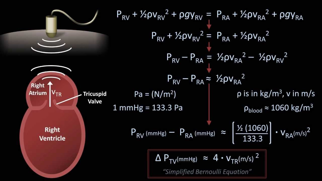 simplified bernoulli equation. the bernoulli equation - medical applications (fluid mechanics lesson 8) youtube simplified :