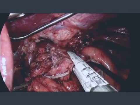 Laparoscopic revision of Nissen fundoplication to Roux-en-Y gastric bypass dr hamoud mohamad