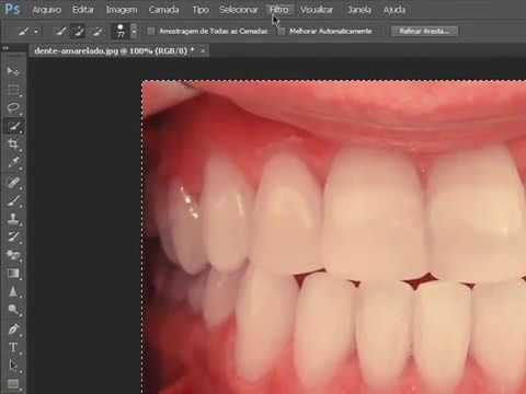 Como Deixar O Dente Branco No Photoshop Cs6 Youtube