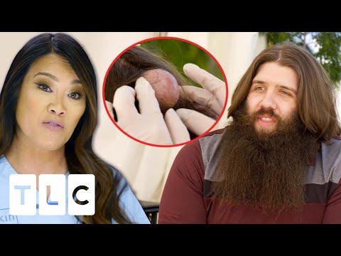 Download Dr. Lee Removes A QUADRUPLE Cyst On A Man's Head | Dr. Pimple Popper