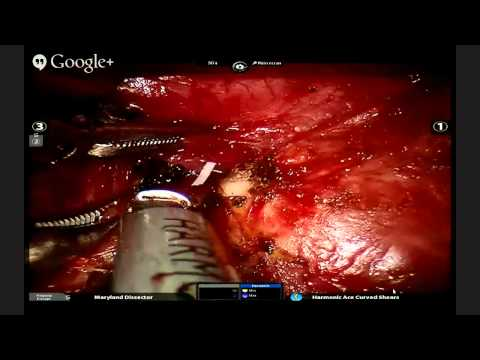 Live lymph node dissection and lobectomy on 10:00