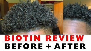 BIOTIN Hair Growth Results Before and After