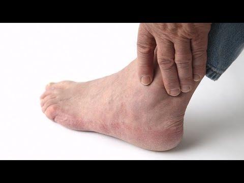 Сильно очень болит пятка на левой ноге при ходьбе