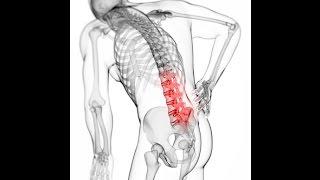 Най-доброто упражнение при болки в кръста и проблеми при стабилизиране на пояса- Умряла буболечка