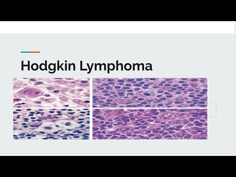Hodgkin Lymphoma: Classification,Staging