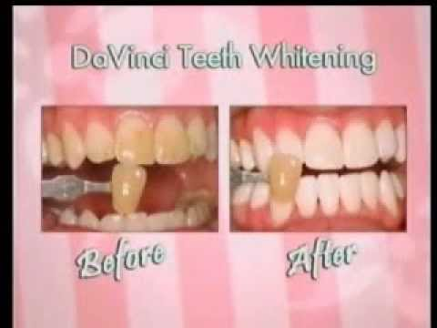 Rockford Teeth Whitening Service 20 Minutes For Only 149