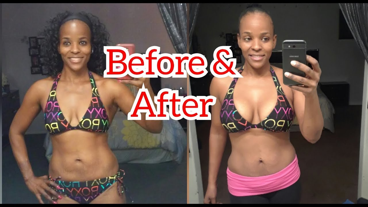 Plastic Surgery Before and After Photos ASPS