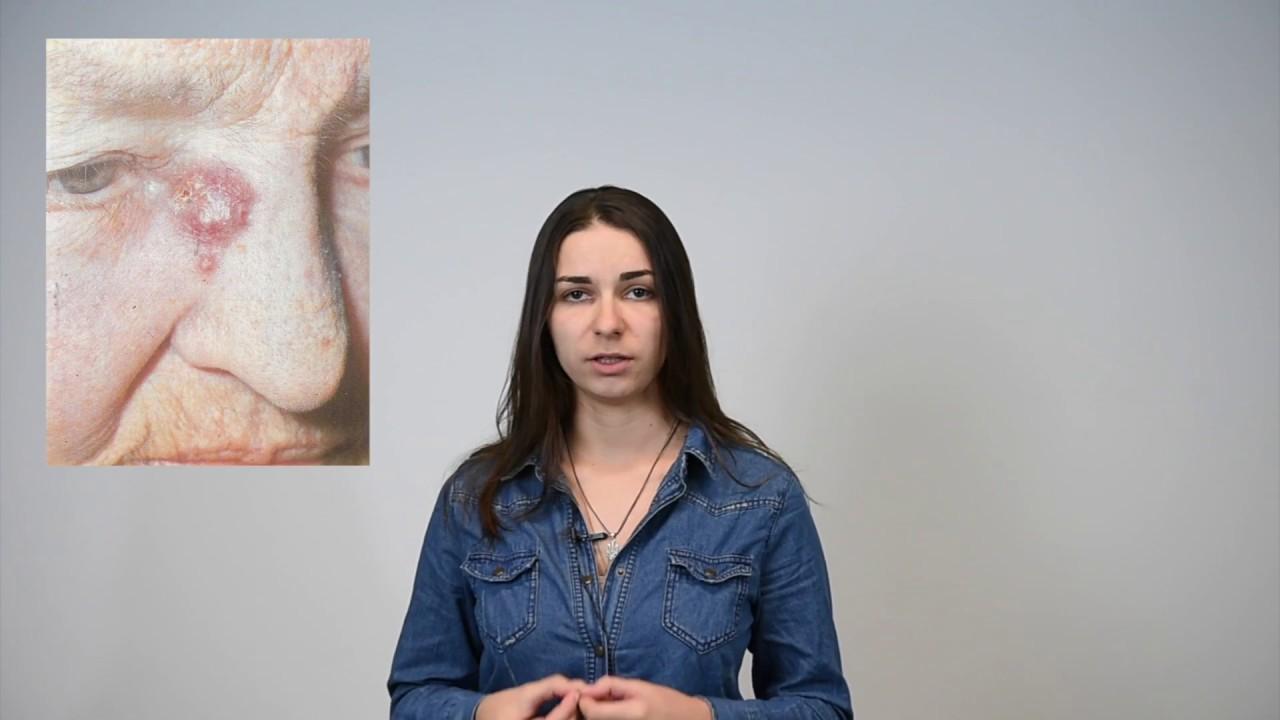 Рак кожи: виды рака кожи, признаки рака кожи, современные методы лечения рака кожи