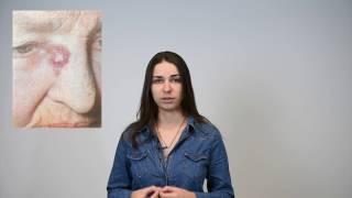 Виды рака кожи: признаки, современные методы лечения(Эксперт Bookimed рассказывает о раке кожи все то, что вы хотели узнать: - какие бывают виды рака кожи? - как проявл..., 2016-11-22T11:19:19.000Z)