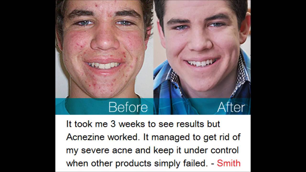Revitol Acnezine Acne Treatment At Home Youtube