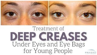 Treatment for Young People with Eye Bags and Deep Creases Under Eyes