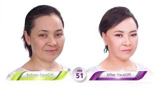 ดึงหน้าเฟซออฟ : ประกาศผลงานศัลแพทย์ตกแต่งไทยให้ก้องโลก ยุบโหนก ดึงหน้า ดึงคอ ทำตา แบบ ไม่บวมไม่ช้ำ