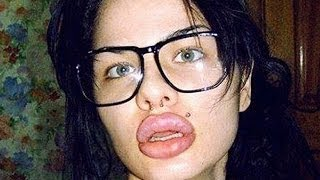 Woman Has The Biggest Lips In The World