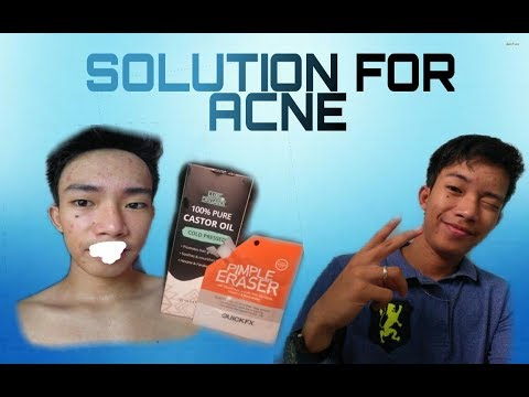 castor-oil-for-acne-&-pimple-eraser-for-acne-solution-review-|-tagalog-|-by-jay-gornez