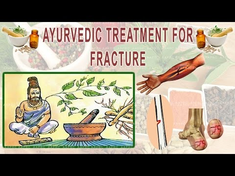 ayurvedic treatment for fracture