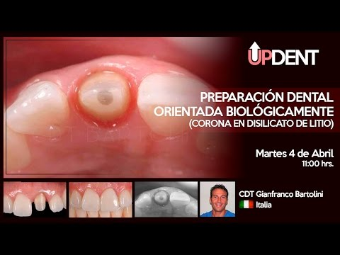 Preparación Dental Orientada Biológicamente (Corona en Disilicato de Litio)