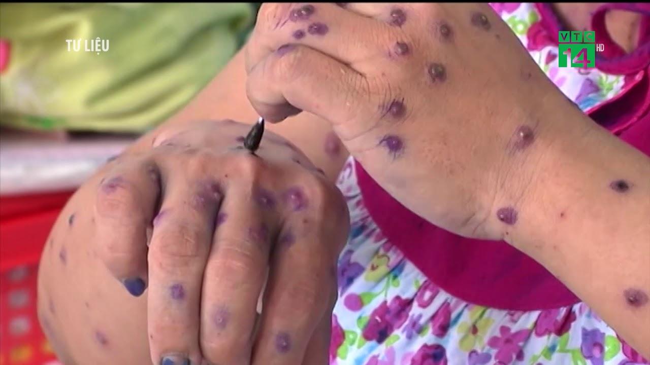 VTC14 | Một bệnh nhân nguy kịch do tự ý sử dụng thuốc điều trị thủy đậu