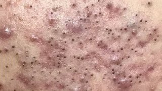 Amazing Blackheads Remove | How to Removal Blackheads,Whiteheads on face Easy