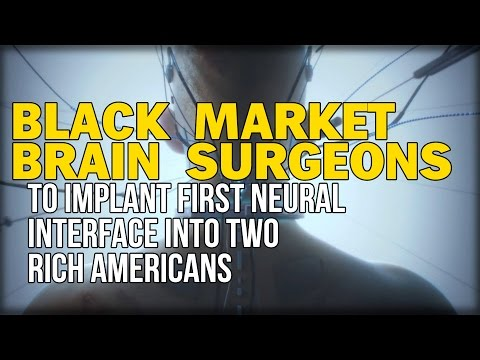 BLACK MARKET BRAIN SURGEONS TO IMPLANT FIRST NEURAL INTERFACE INTO TWO RICH AMERICANS