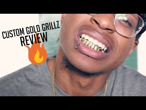 Custom Gold Grillz (Review)