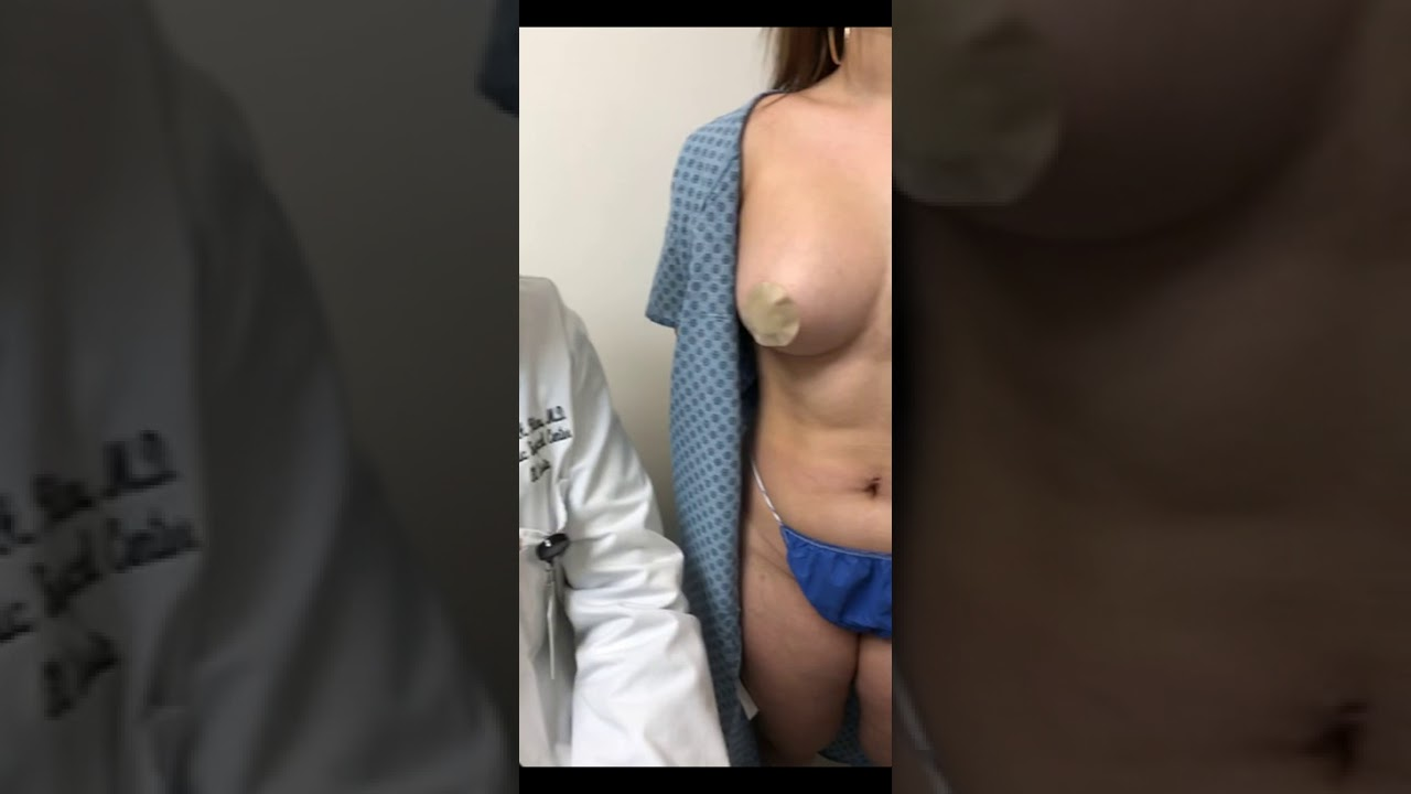 Breast implants michigan cosmetic surgery center