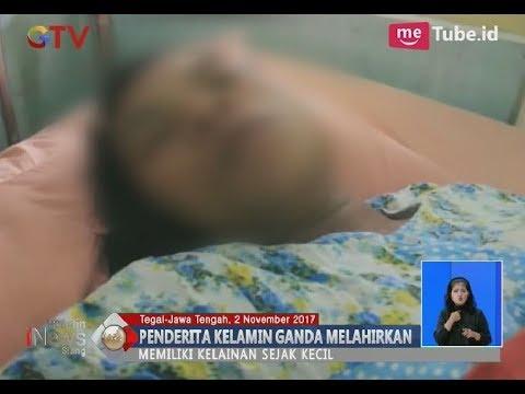 Penderita Kelamin Ganda Melahirkan Bayi Laki-laki - BIS 03/11