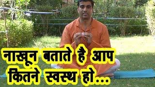 हाथों के नाख़ून बताते है आपका स्वास्थ्य #Morning_Yoga #Kapalbhati #Anulomvilom #DrManoj_Yogacharya