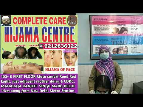 result-after-hijama-of-lady-head-for-hair-solution-hair-fall-without-cutting-hair-in-delhi