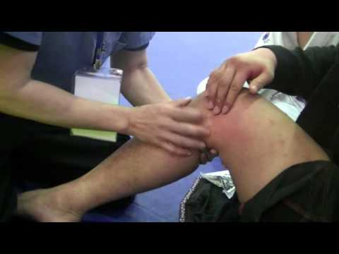 Drawer test - Grade 3 tear ACL, PCL, MCL (unhappy triad knee injury)