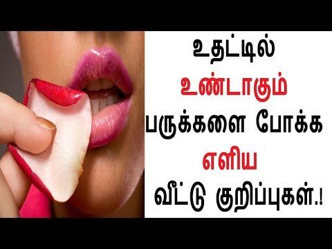 உதட்டில் உண்டாகும் பருக்களை போக்க எளிய  வீட்டு குறிப்புகள்.! Health Care & Beauty Tips Tamil