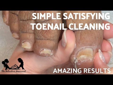 👣 Simple Satisfying Toenail Cleaning French Pedicure Tutorial 👣 thumbnail