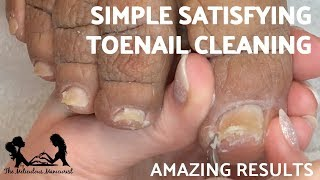 👣 Simple Satisfying Toenail Cleaning French Pedicure Tutorial 👣