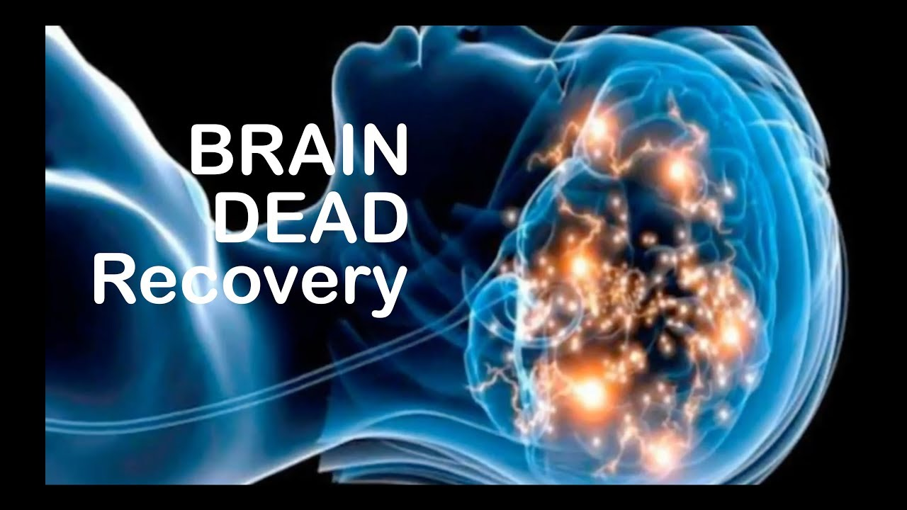 brain dead movie download in hindi