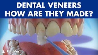 Veneers - Preparation and placement of dental veneers ©
