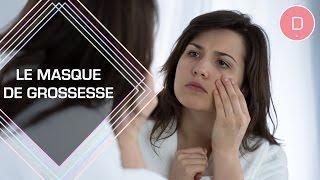 Masque de grossesse : comment l'éviter ? - Beauté & Grossesse