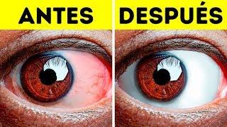 Rojas ojos líneas ellos? qué tienen en mis ¿Por