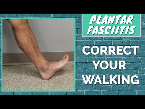 Learn to Walk Correctly or Your Plantar Fasciitis May Not Heal