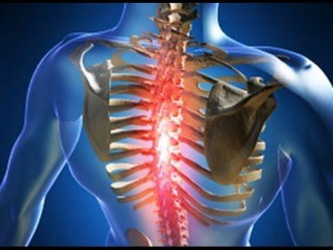 Кашель при остеохондрозе грудного отдела - YouTube