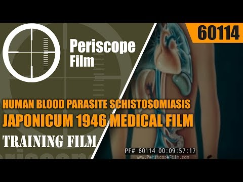 HUMAN BLOOD PARASITE  SCHISTOSOMIASIS JAPONICUM 1946 MEDICAL FILM  60114