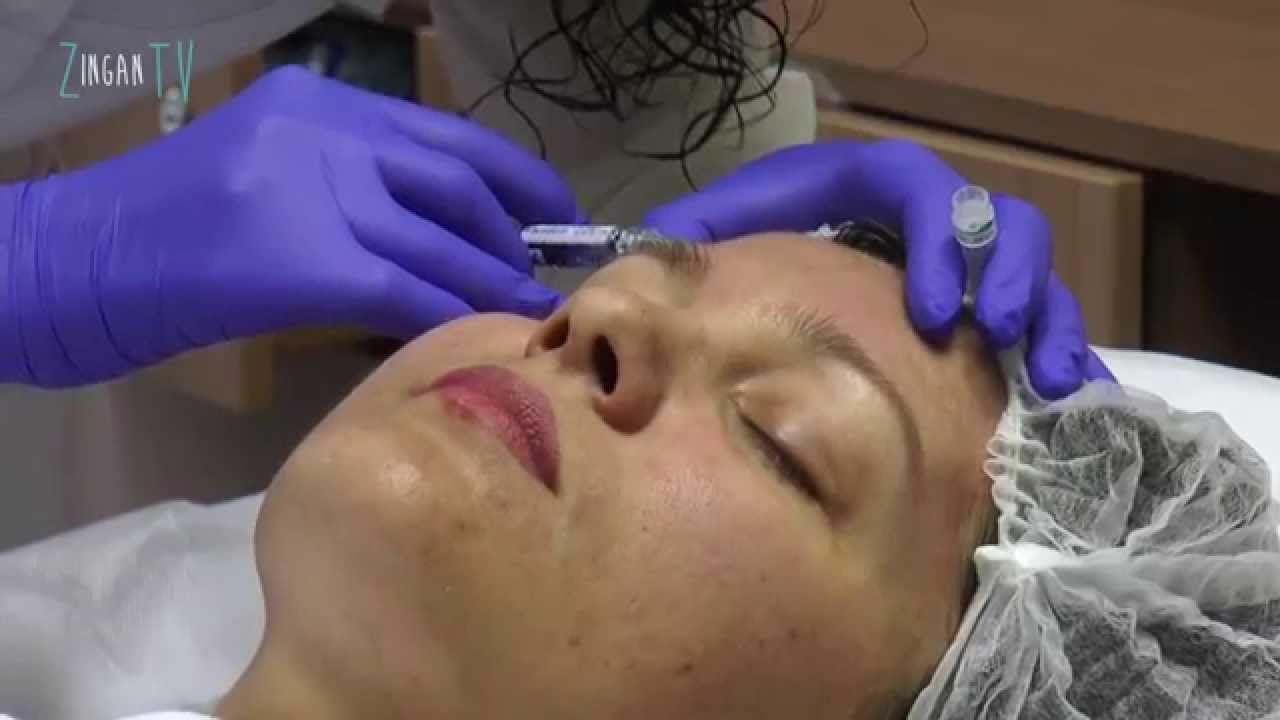 Proceduri dermatologice SANCOS - YouTube