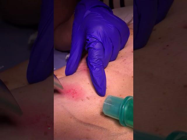 Seborrheic Keratosis further treatment by Dr Nisha Jha