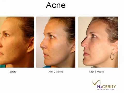 Skincerity Before & After Slide Show.mov