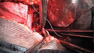 Total Abdominal Hysterectomy: Vaginal cuff closure and attachment to cardinal ligaments