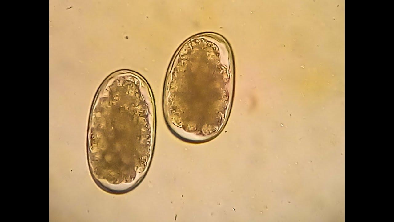 noncatorosis és ankilostomiasis