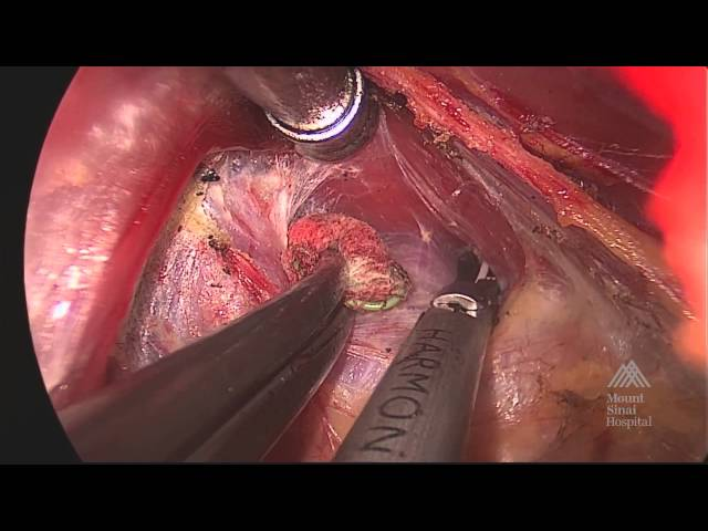 THE MOUNT SINAI SURGICAL FILM ATLAS Transaxillary Thyroidectomy