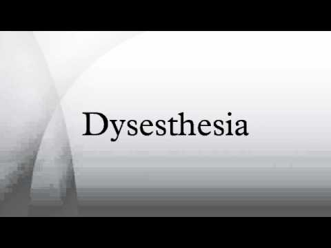 dysesthesia - youtube, Skeleton