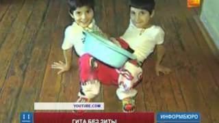 В Кыргызстане скончалась одна из пары разделенных сиамских близнецов